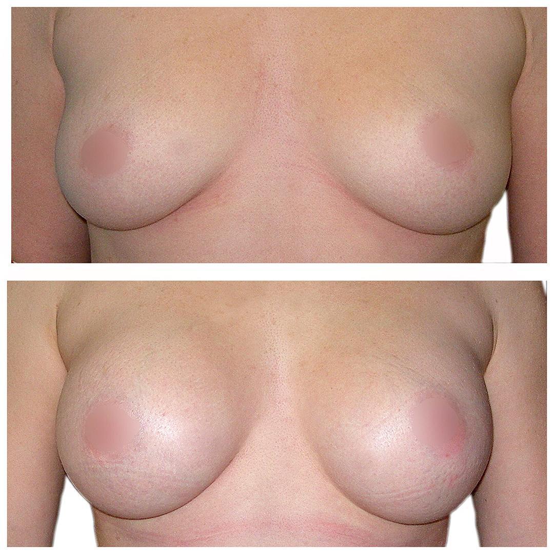 До-после увеличение молочной железы 2