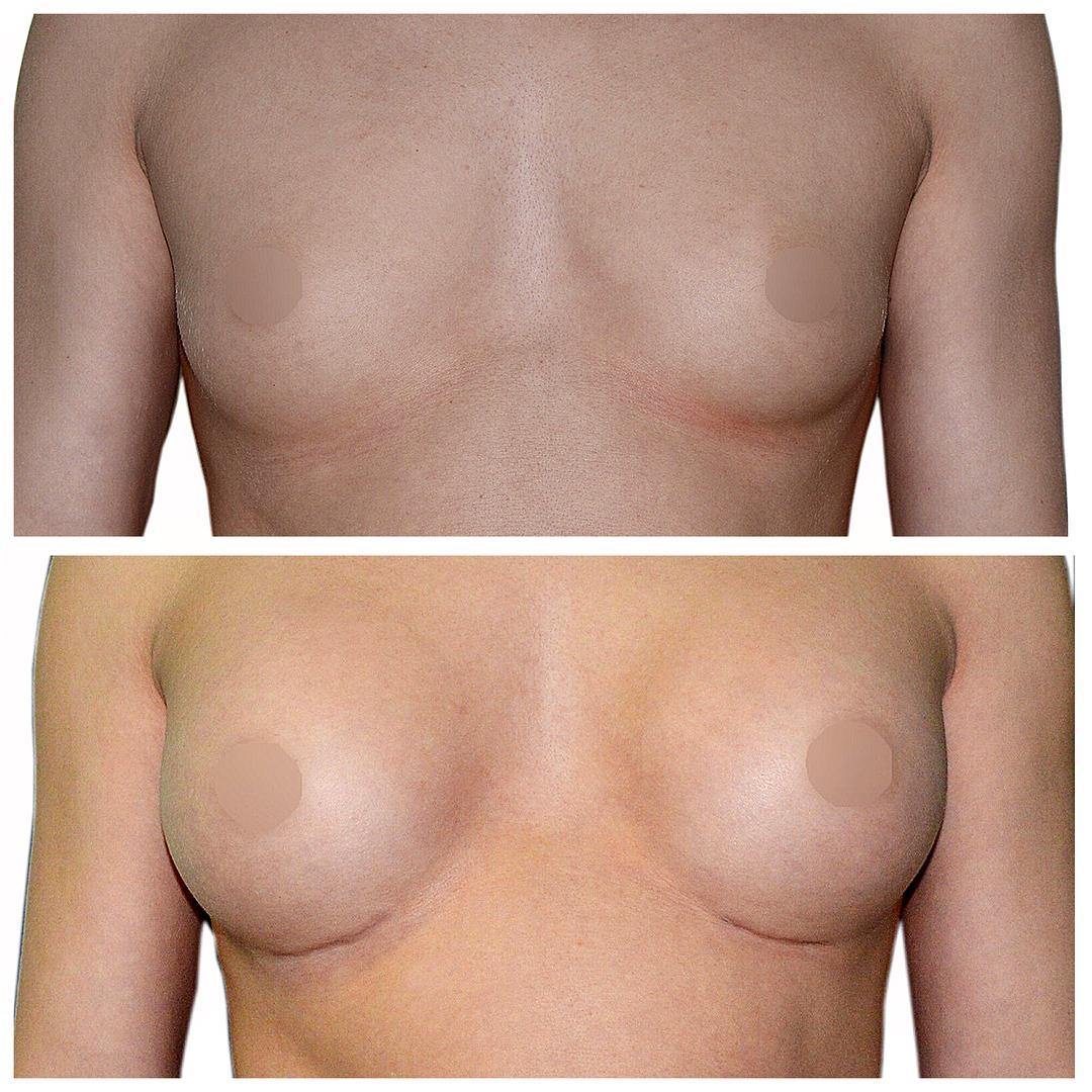 До-после увеличение молочной железы 3