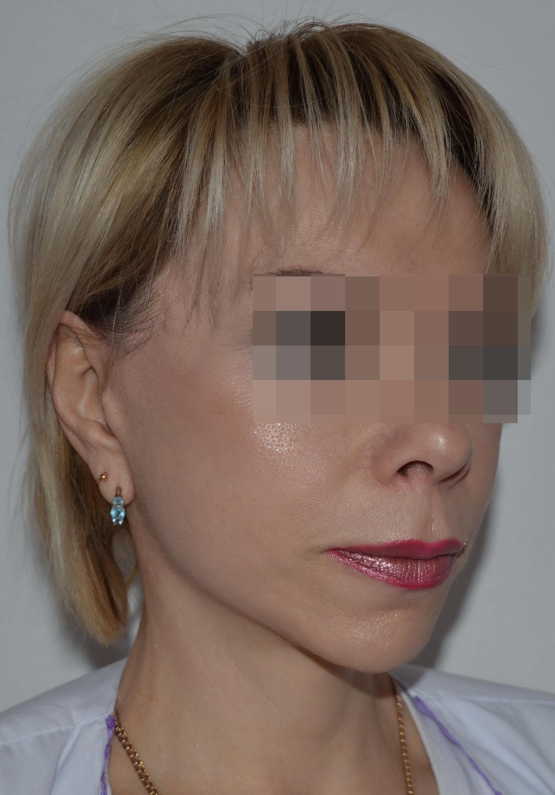 podtyazhka-lica-i-shei-v-toliatti-chubarov-10