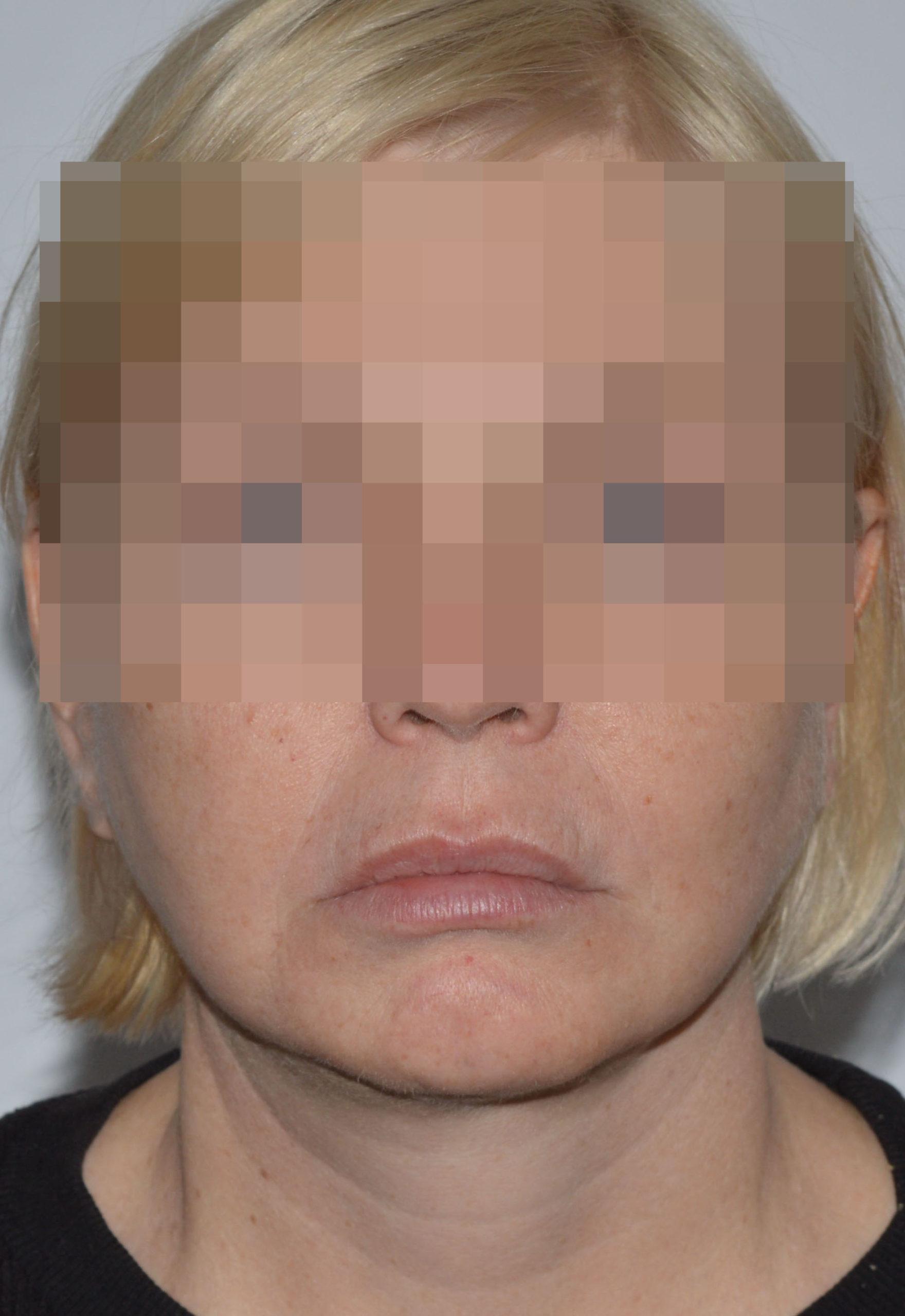 podtyazhka-lica-i-shei-v-toliatti-chubarov-42