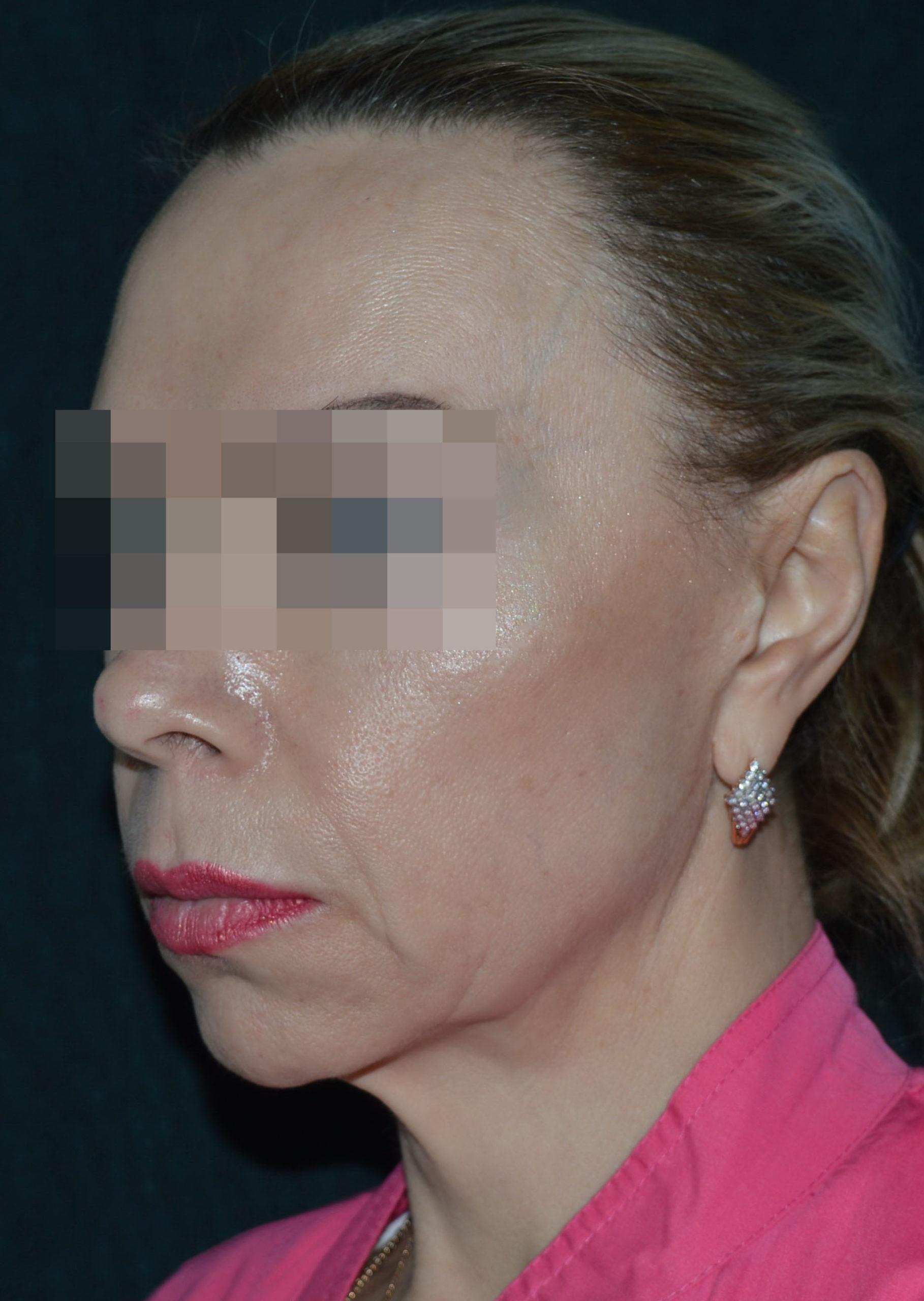 podtyazhka-lica-i-shei-v-toliatti-chubarov-5