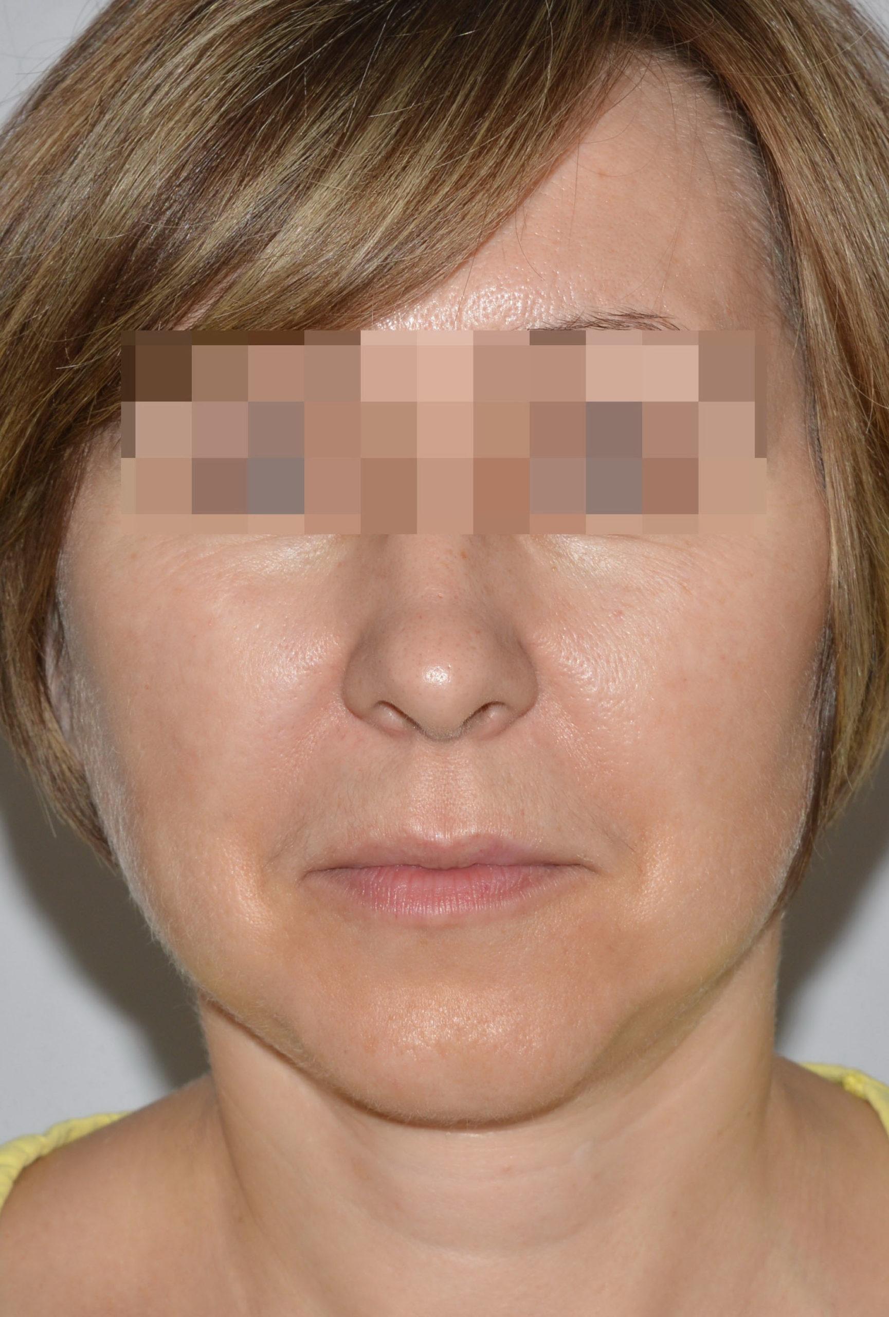 podtyazhka-lica-i-shei-v-toliatti-chubarov-52