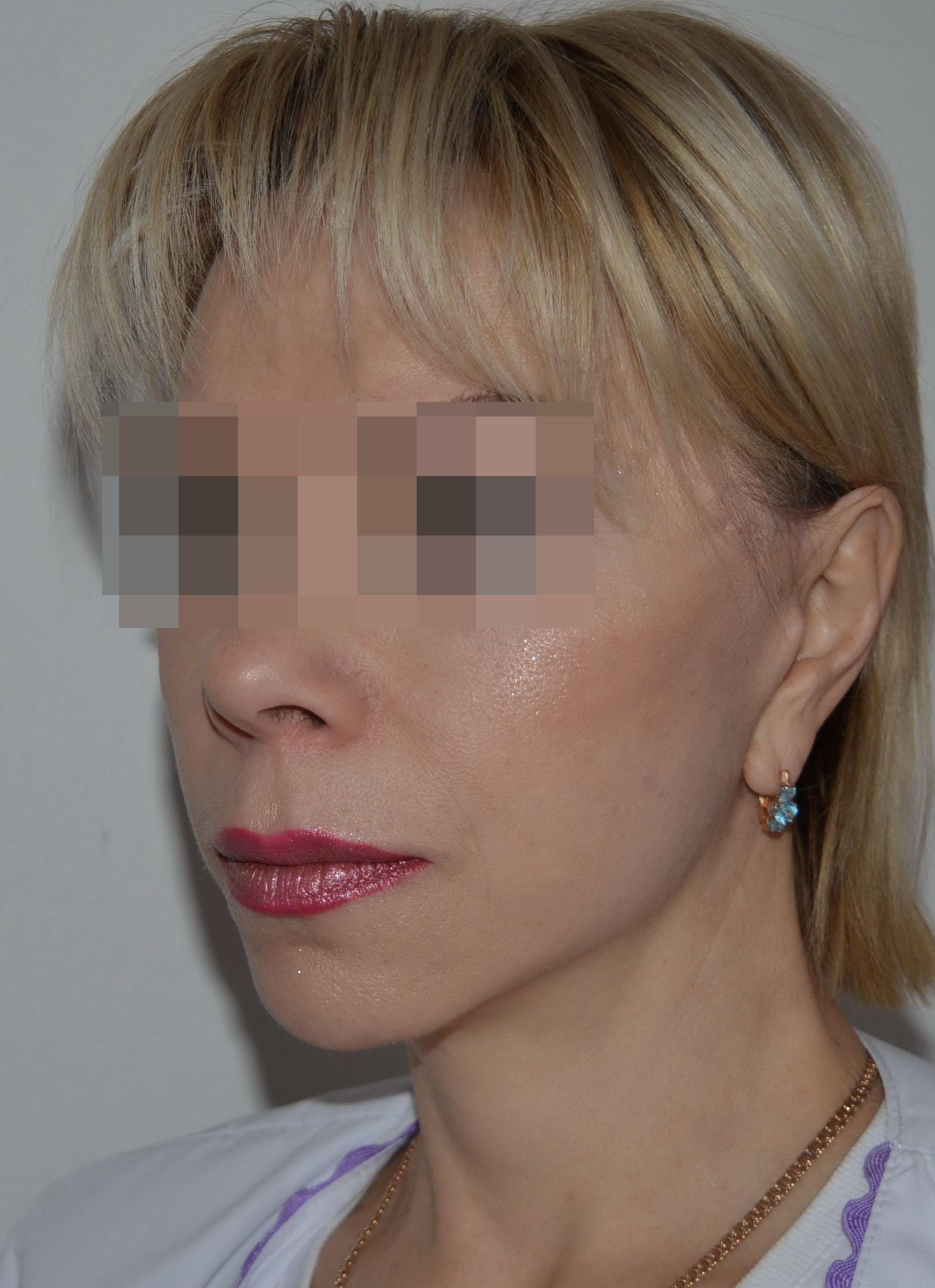 podtyazhka-lica-i-shei-v-toliatti-chubarov-6